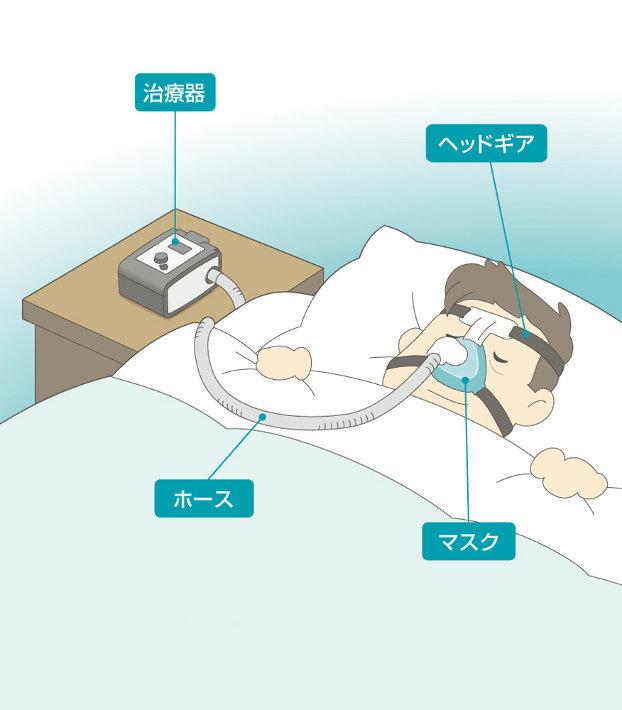 CPAP(シーパップ)-1