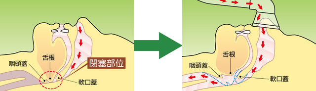 CPAP(シーパップ)-2